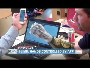 Double Amputee Gets Himself 2 iPhone-Controlled Robotic Arms